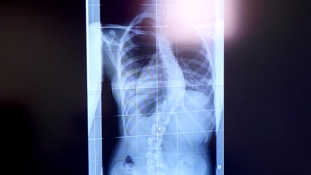 Spinal Surgery Scoliosis Patient X-ray
